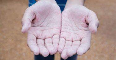 Comment soigner des crevasses aux doigts